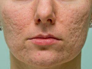 бугристая кожа лица