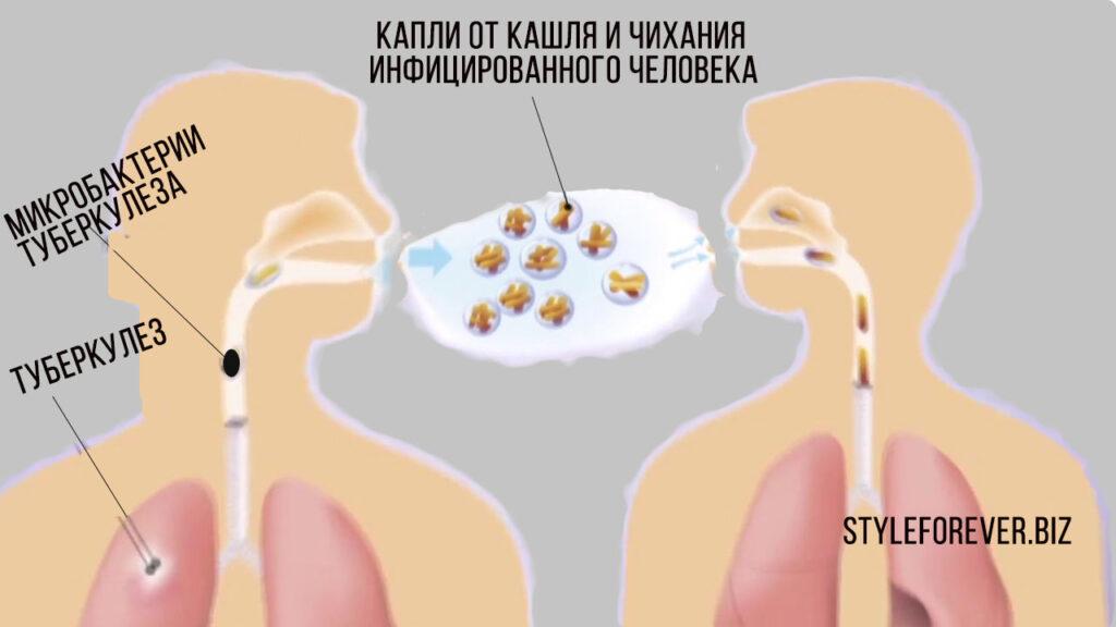 туберкулез органов дыхания